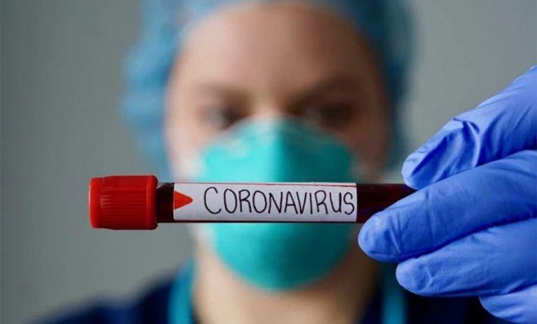 Cartago acumula 81 casos de contagio por COVID-19