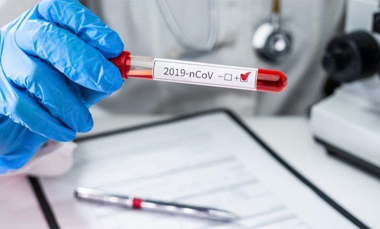 1.022 nuevos casos confirmados de Coronavirus este 26 de mayo; ya son más de 23 mil