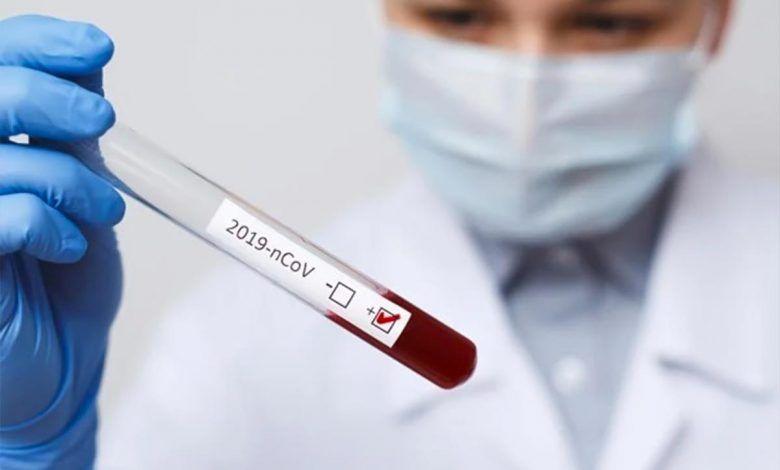 Reportan 64 nuevos casos de Coronavirus en el Valle del Cauca; Ya son 2054 contagiados en todo el país